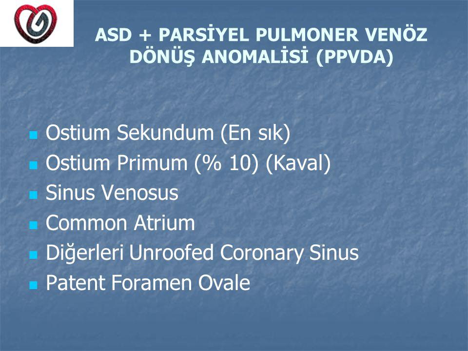 ASD + PARSİYEL PULMONER VENÖZ DÖNÜŞ ANOMALİSİ (PPVDA) Ostium Sekundum (En sık) Ostium Primum (% 10) (Kaval) Sinus Venosus Common Atrium Diğerleri Unro