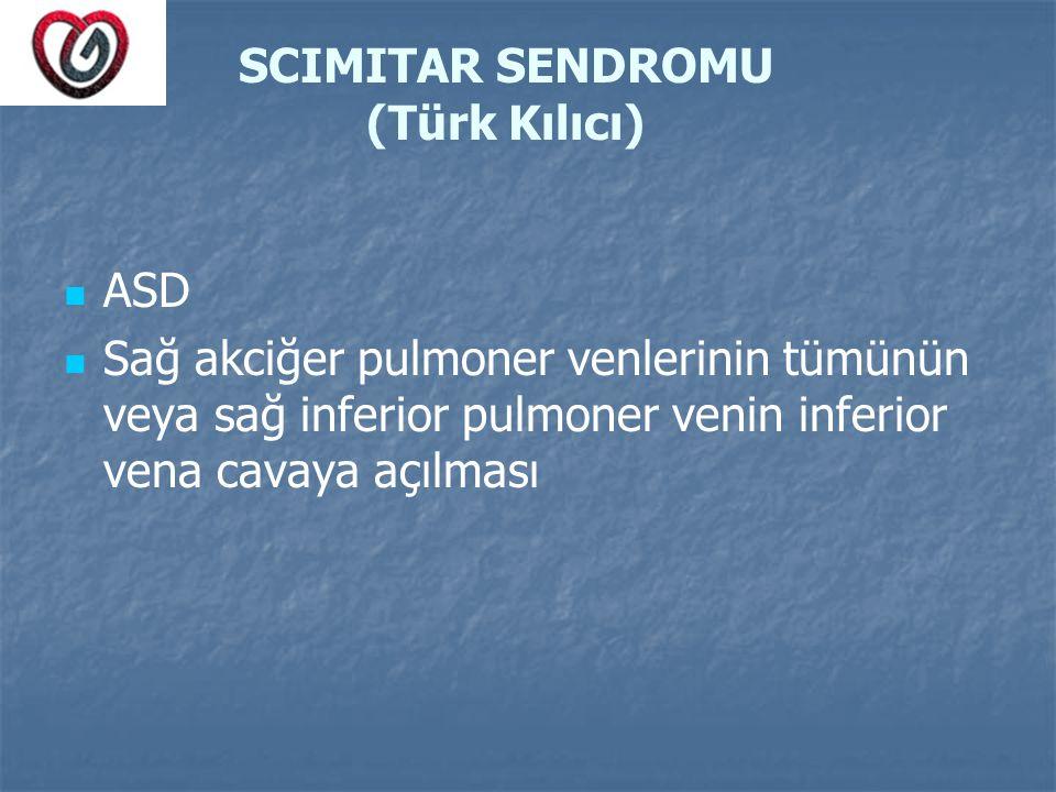 SCIMITAR SENDROMU (Türk Kılıcı) ASD Sağ akciğer pulmoner venlerinin tümünün veya sağ inferior pulmoner venin inferior vena cavaya açılması