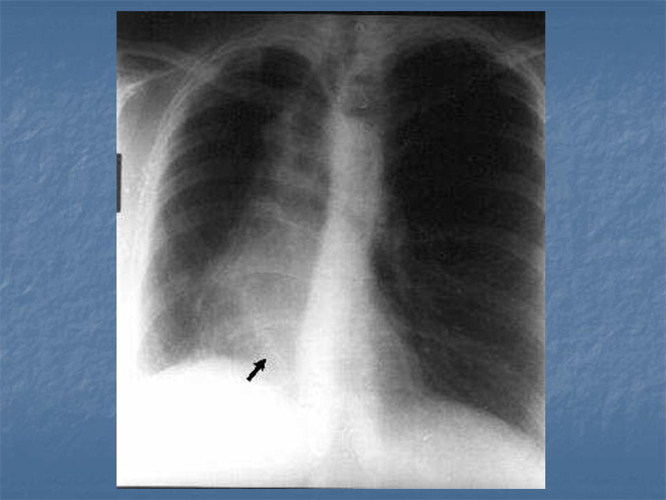 Tanı   PA akciğer grafisi: Pulmoner ven curve seklinde VCI 'a dökülür   Ekokardiografi:   Kateterizasyon: Desenden aortadan sağ alt lob akciğeri besleyen aksesuar bir arter?