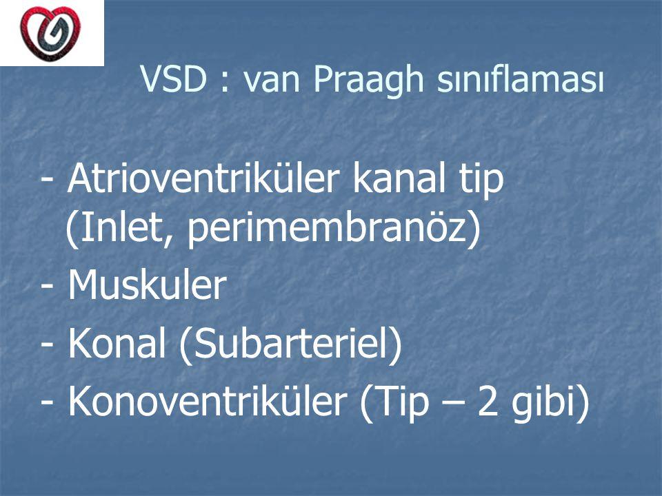 VSD : van Praagh sınıflaması - Atrioventriküler kanal tip (Inlet, perimembranöz) - Muskuler - Konal (Subarteriel) - Konoventriküler (Tip – 2 gibi)