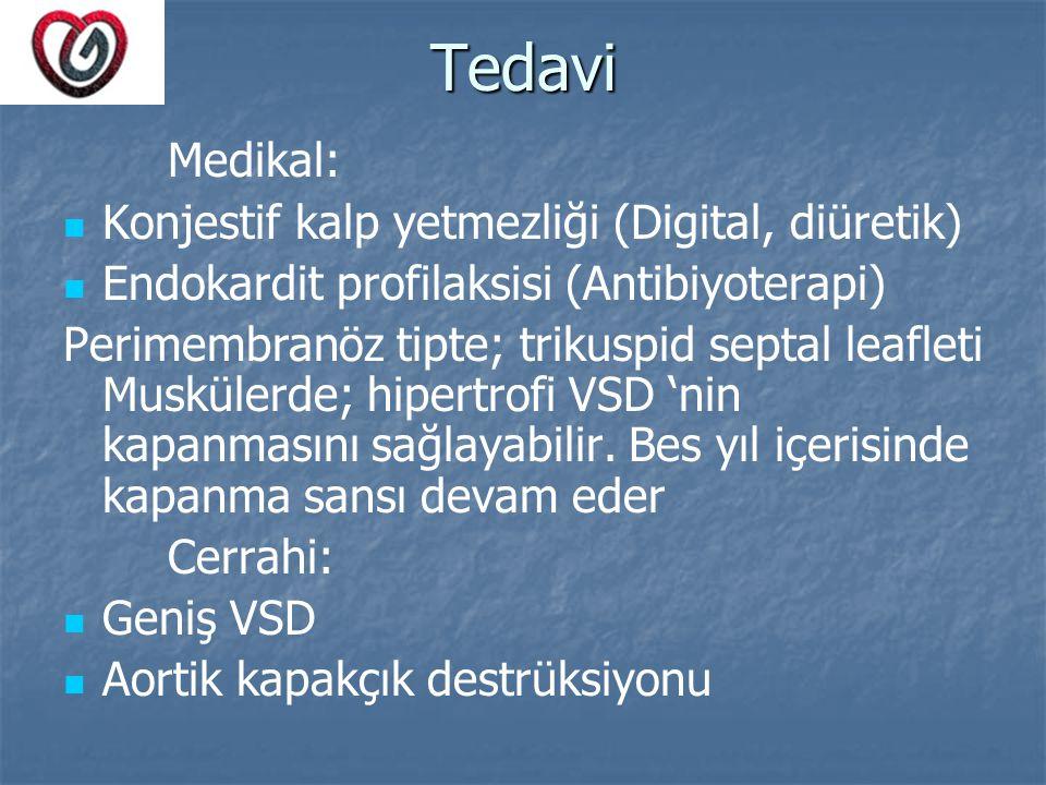 Tedavi Medikal: Konjestif kalp yetmezliği (Digital, diüretik) Endokardit profilaksisi (Antibiyoterapi) Perimembranöz tipte; trikuspid septal leafleti