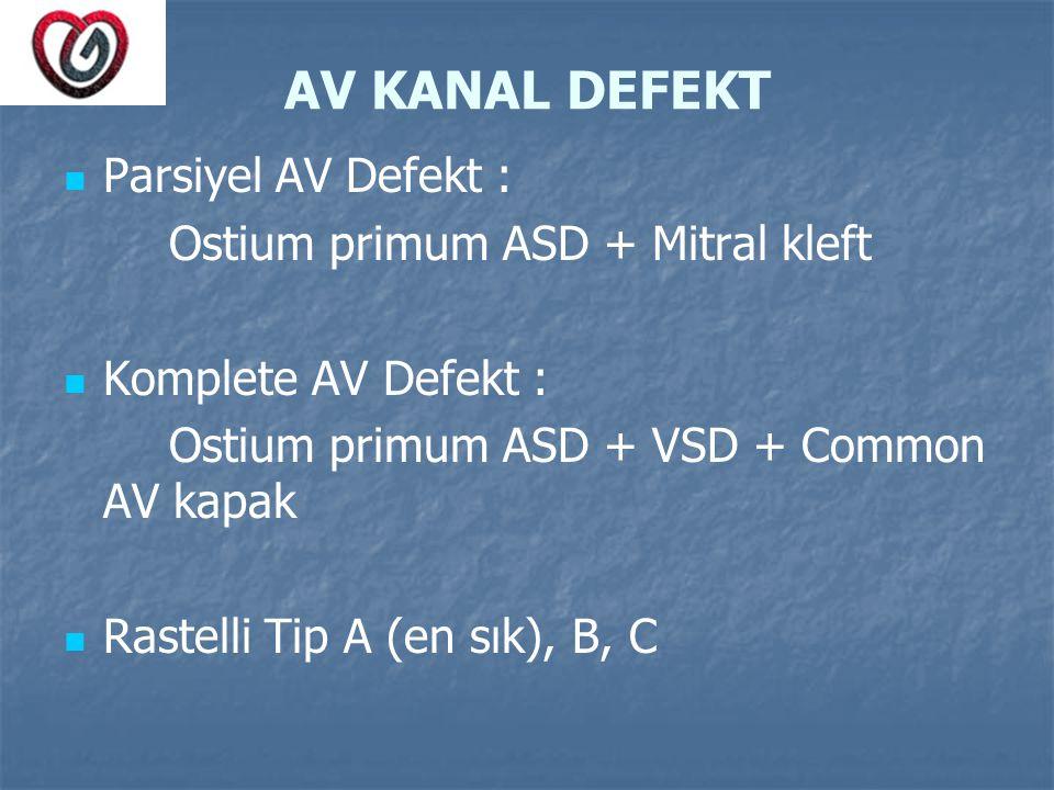 AV KANAL DEFEKT Parsiyel AV Defekt : Ostium primum ASD + Mitral kleft Komplete AV Defekt : Ostium primum ASD + VSD + Common AV kapak Rastelli Tip A (e