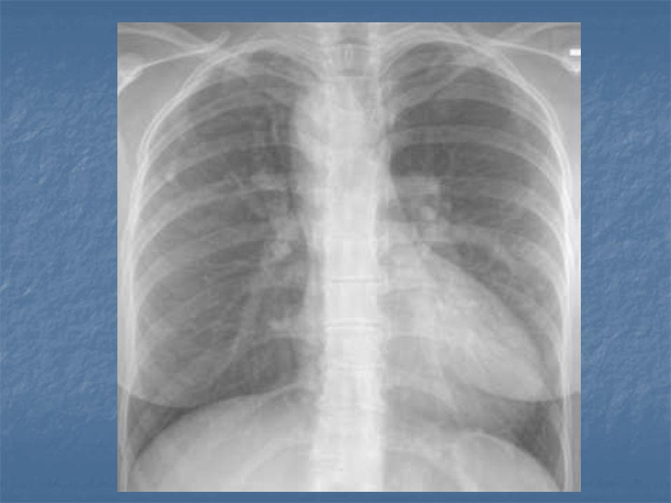 Sınıflama ( Sınıflama (Van Praagh) - A1: Ana pulmoner arter trunktan ayrıldıktan sonra sağ ve sol pulmoner dalları çıkar - A2: Sağ ve sol pulmoner arterler trunkın arkasından çıkar - A3: Tek taraflı pulmoner arter vardır.