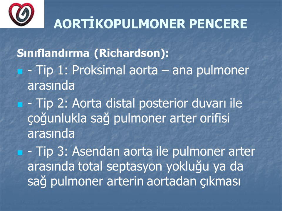 AORTİKOPULMONER PENCERE Sınıflandırma (Richardson): - Tip 1: Proksimal aorta – ana pulmoner arasında - Tip 2: Aorta distal posterior duvarı ile çoğunl