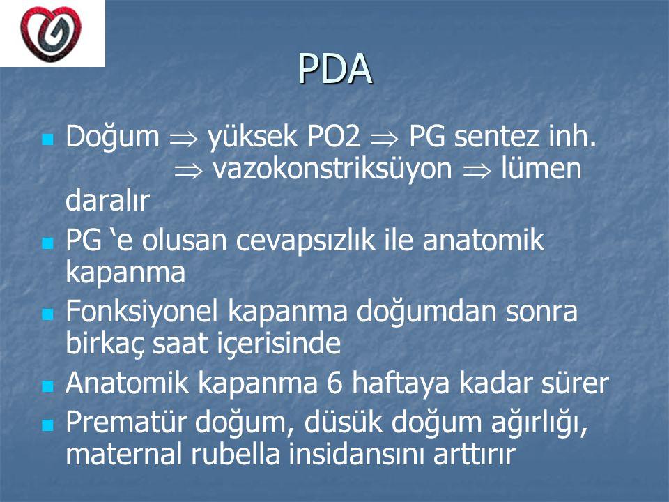 PDA Doğum  yüksek PO2  PG sentez inh.  vazokonstriksüyon  lümen daralır PG 'e olusan cevapsızlık ile anatomik kapanma Fonksiyonel kapanma doğumdan