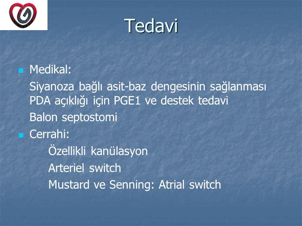 Tedavi Medikal: Siyanoza bağlı asit-baz dengesinin sağlanması PDA açıklığı için PGE1 ve destek tedavi Balon septostomi Cerrahi: Özellikli kanülasyon A