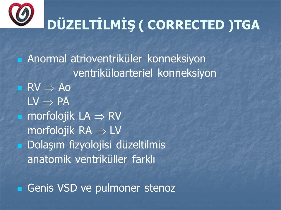 DÜZELTİLMİŞ ( CORRECTED )TGA Anormal atrioventriküler konneksiyon ventriküloarteriel konneksiyon RV  Ao LV  PA morfolojik LA  RV morfolojik RA  LV
