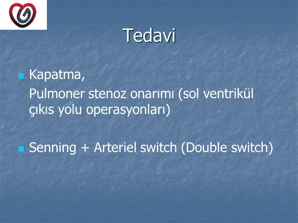Tedavi Kapatma, Pulmoner stenoz onarımı (sol ventrikül çıkıs yolu operasyonları) Senning + Arteriel switch (Double switch)