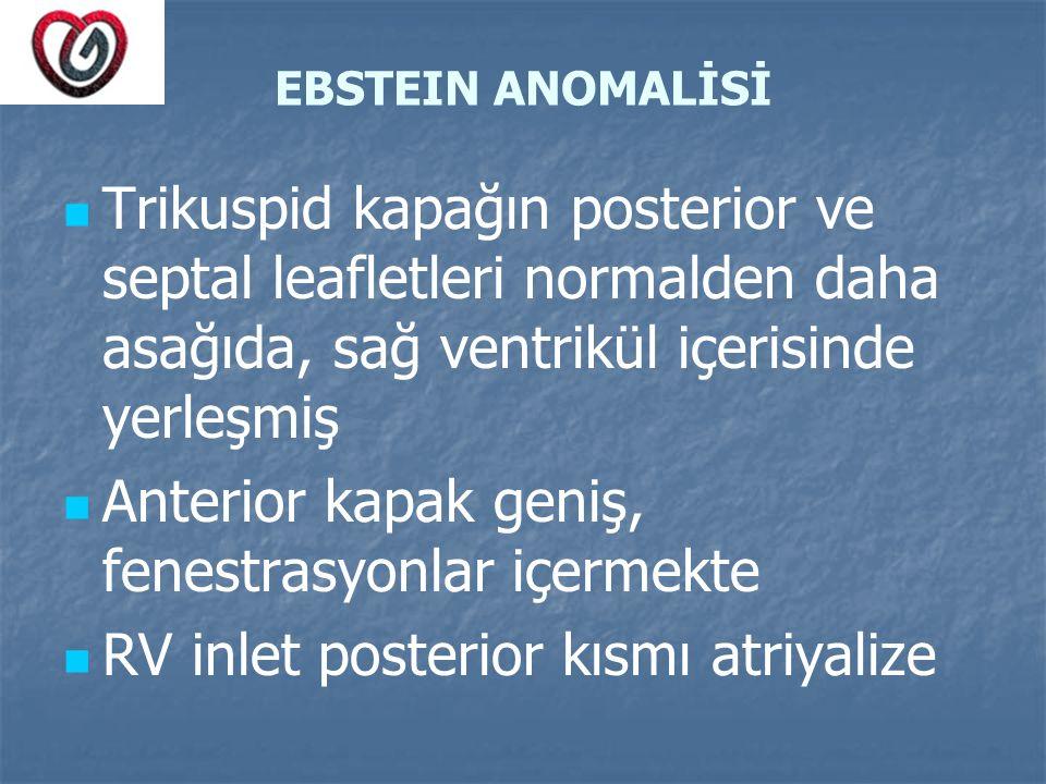 EBSTEIN ANOMALİSİ Trikuspid kapağın posterior ve septal leafletleri normalden daha asağıda, sağ ventrikül içerisinde yerleşmiş Anterior kapak geniş, f