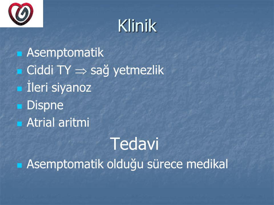 Klinik Asemptomatik Ciddi TY  sağ yetmezlik İleri siyanoz Dispne Atrial aritmi Tedavi Asemptomatik olduğu sürece medikal