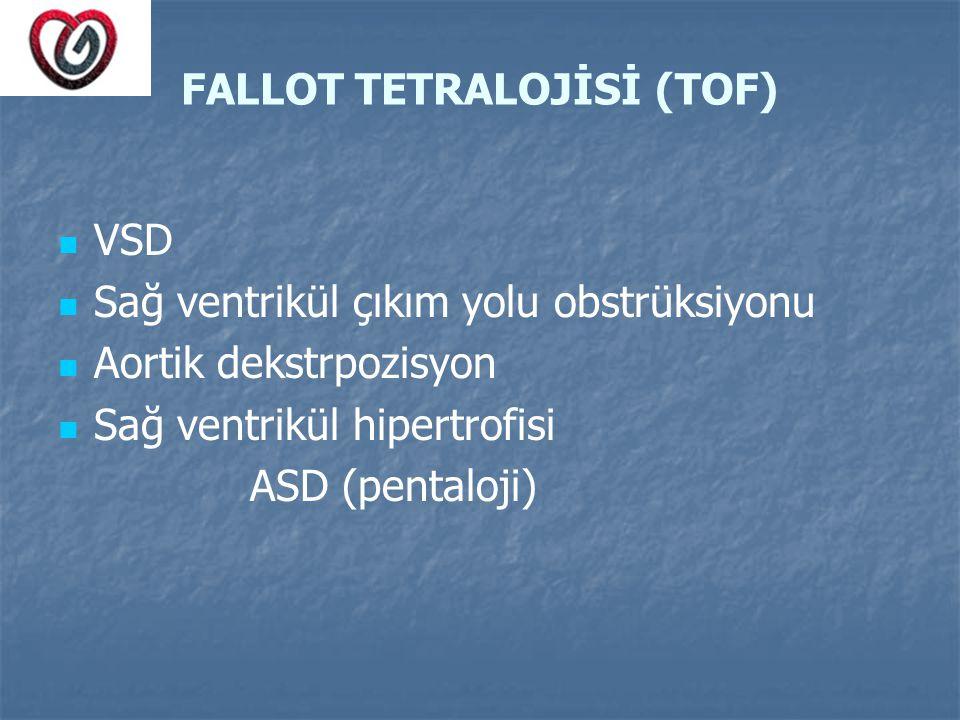 FALLOT TETRALOJİSİ (TOF) VSD Sağ ventrikül çıkım yolu obstrüksiyonu Aortik dekstrpozisyon Sağ ventrikül hipertrofisi ASD (pentaloji)