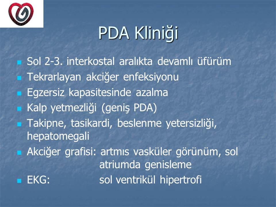 PDA Kliniği Sol 2-3. interkostal aralıkta devamlı üfürüm Tekrarlayan akciğer enfeksiyonu Egzersiz kapasitesinde azalma Kalp yetmezliği (geniş PDA) Tak