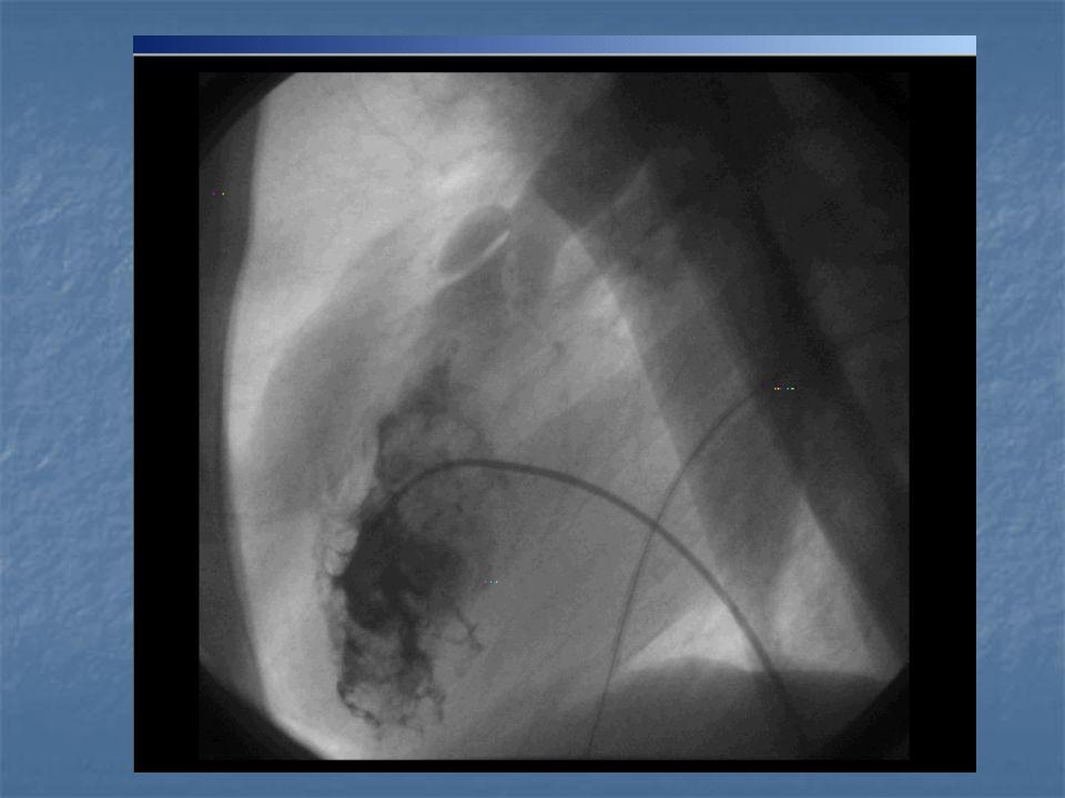 Tedavi Medikal: PGE1 (PDA için) İnfundibuler kontraksiyona yönelik β- bloker (propranolol) Destek tedavisi Cerrahi Sistemik-pulmoner santlar Total Onarım (1-2 yaş)