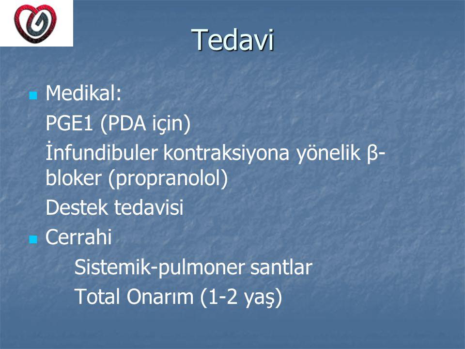 Tedavi Medikal: PGE1 (PDA için) İnfundibuler kontraksiyona yönelik β- bloker (propranolol) Destek tedavisi Cerrahi Sistemik-pulmoner santlar Total Ona