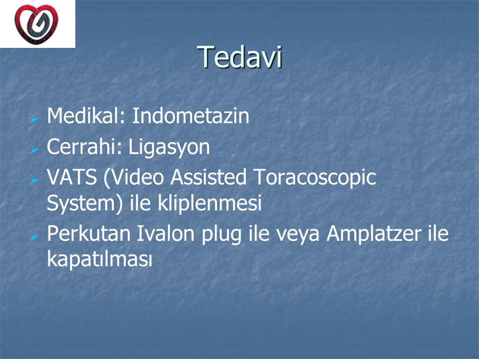 Tedavi   Medikal: Indometazin   Cerrahi: Ligasyon   VATS (Video Assisted Toracoscopic System) ile kliplenmesi   Perkutan Ivalon plug ile veya