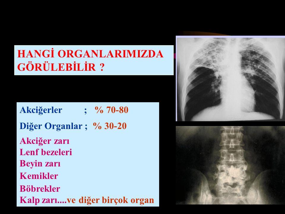 HANGİ ORGANLARIMIZDA GÖRÜLEBİLİR ? Akciğerler ; % 70-80 Diğer Organlar ; % 30-20 Akciğer zarı Lenf bezeleri Beyin zarı Kemikler Böbrekler Kalp zarı...