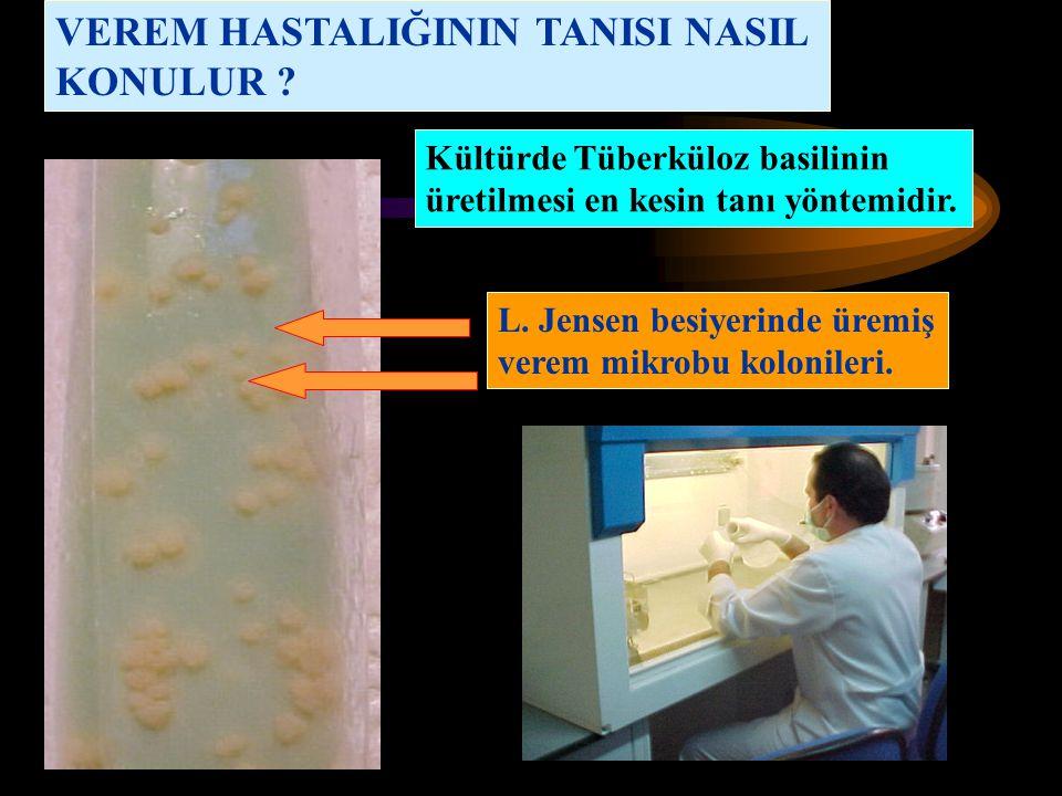 VEREM HASTALIĞININ TANISI NASIL KONULUR ? Kültürde Tüberküloz basilinin üretilmesi en kesin tanı yöntemidir. L. Jensen besiyerinde üremiş verem mikrob