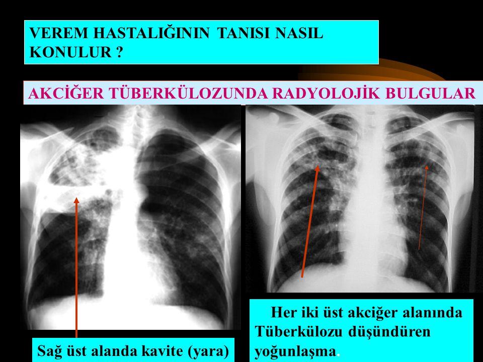 VEREM HASTALIĞININ TANISI NASIL KONULUR ? AKCİĞER TÜBERKÜLOZUNDA RADYOLOJİK BULGULAR Sağ üst alanda kavite (yara) Her iki üst akciğer alanında Tüberkü