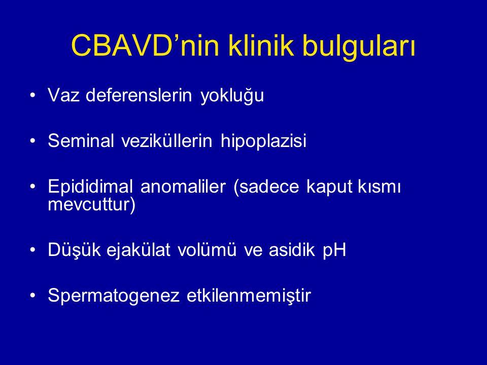 CBAVD'nin klinik bulguları Vaz deferenslerin yokluğu Seminal veziküllerin hipoplazisi Epididimal anomaliler (sadece kaput kısmı mevcuttur) Düşük ejakü