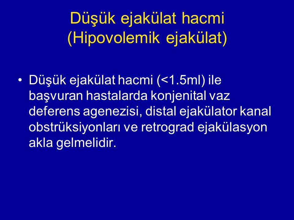 Düşük ejakülat hacmi (Hipovolemik ejakülat) Düşük ejakülat hacmi (<1.5ml) ile başvuran hastalarda konjenital vaz deferens agenezisi, distal ejakülator