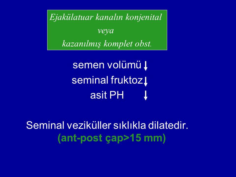 semen volümü seminal fruktoz asit PH Seminal veziküller sıklıkla dilatedir. (ant-post çap>15 mm) Ejakülatuar kanalın konjenital veya kazanılmış komple