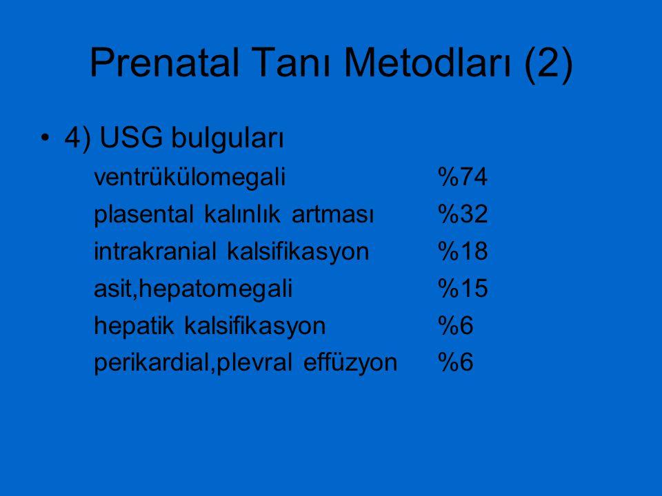 Prenatal Tanı Metodları (2) 4) USG bulguları ventrükülomegali %74 plasental kalınlık artması %32 intrakranial kalsifikasyon %18 asit,hepatomegali %15