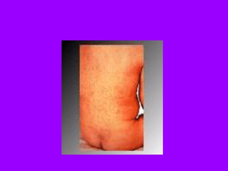 Epidemiyoloji Reprodüktif dönemdeki kadınların %10 aşılanmadığı veya aşının etkili olmaması nedeniyle hastalığa bağışık olmadıkları tespit edilmiştir.