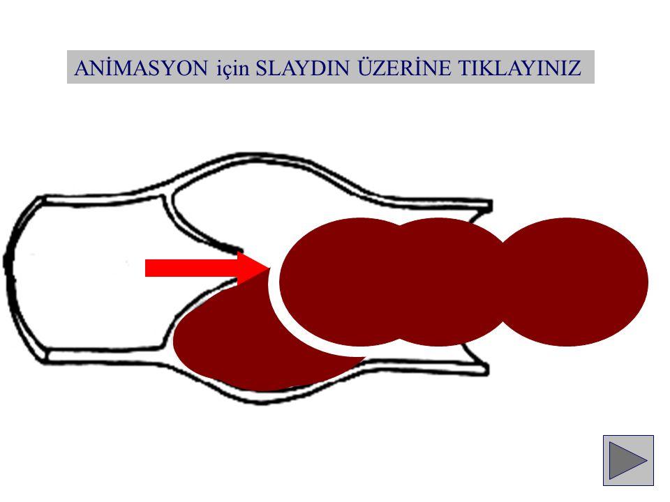 Pıhtılaşma sistemi Sağlam endotel Normal kan akımı Fibrinoliz Doğal antikoagülanlar SAĞLIKLI BİREY
