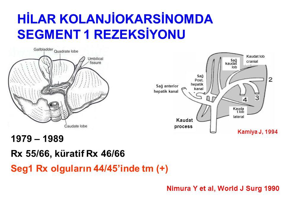 HİLAR KOLANJİOKARSİNOMDA SEGMENT 1 REZEKSİYONU 1979 – 1989 Rx 55/66, küratif Rx 46/66 Seg1 Rx olguların 44/45'inde tm (+) Nimura Y et al, World J Surg 1990 Sağ anterior hepatik kanal Sağ Post.