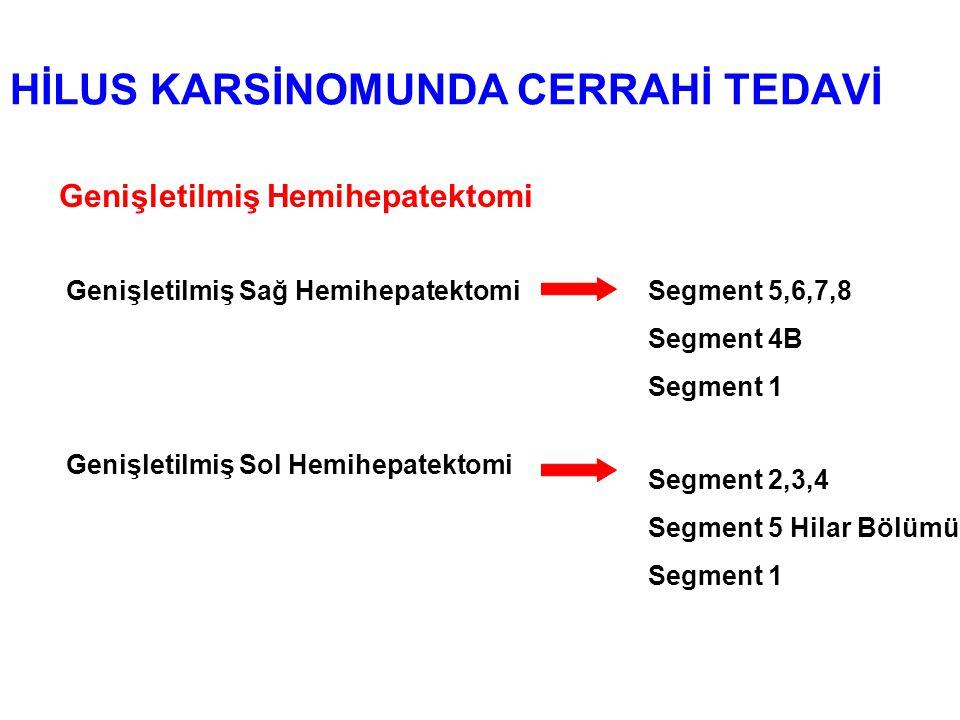 HİLUS KARSİNOMUNDA CERRAHİ TEDAVİ Genişletilmiş Hemihepatektomi Genişletilmiş Sağ HemihepatektomiSegment 5,6,7,8 Segment 4B Segment 1 Genişletilmiş Sol Hemihepatektomi Segment 2,3,4 Segment 5 Hilar Bölümü Segment 1