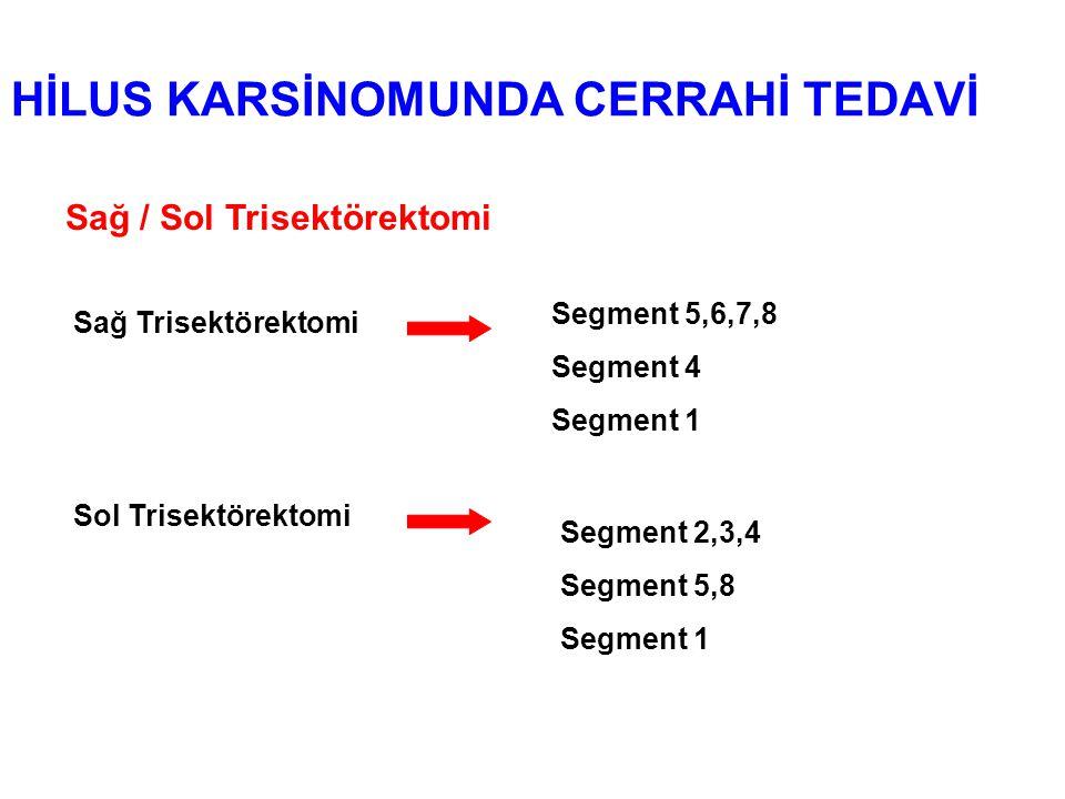HİLUS KARSİNOMUNDA CERRAHİ TEDAVİ Sağ / Sol Trisektörektomi Sağ Trisektörektomi Segment 5,6,7,8 Segment 4 Segment 1 Sol Trisektörektomi Segment 2,3,4 Segment 5,8 Segment 1