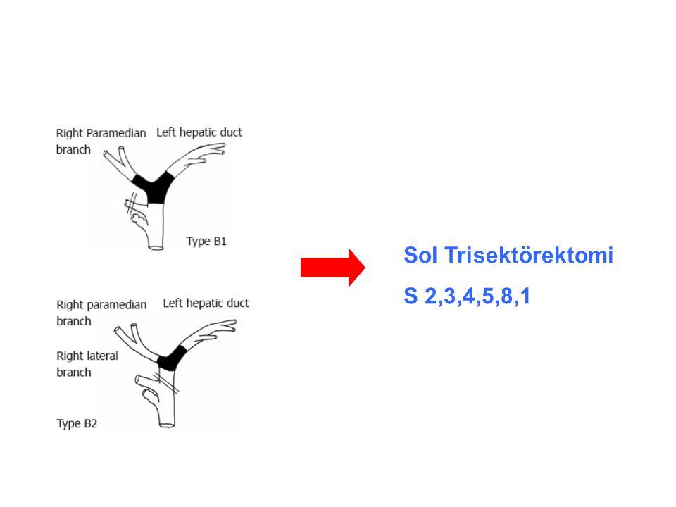 Sol Trisektörektomi S 2,3,4,5,8,1
