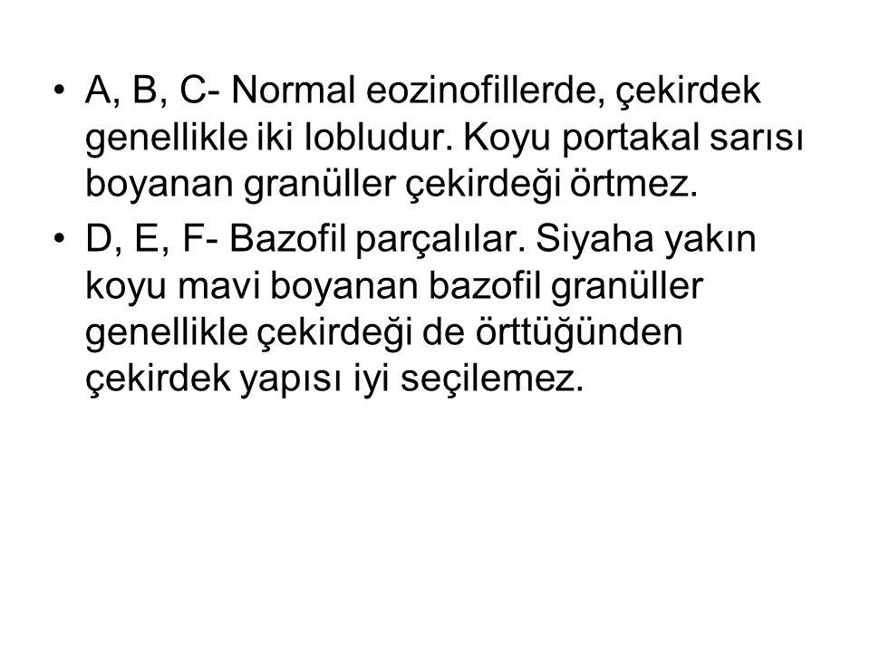 A, B, C- Normal eozinofillerde, çekirdek genellikle iki lobludur.