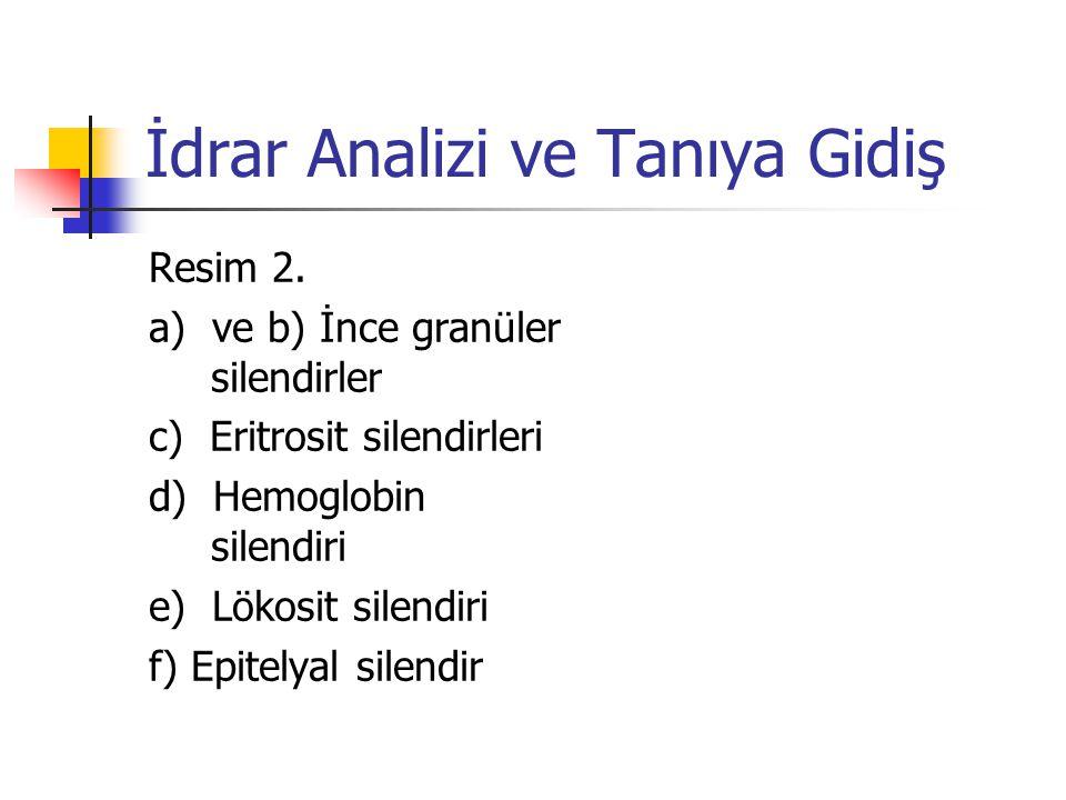 İdrar Analizi ve Tanıya Gidiş Resim 2. a) ve b) İnce granüler silendirler c) Eritrosit silendirleri d) Hemoglobin silendiri e) Lökosit silendiri f) Ep