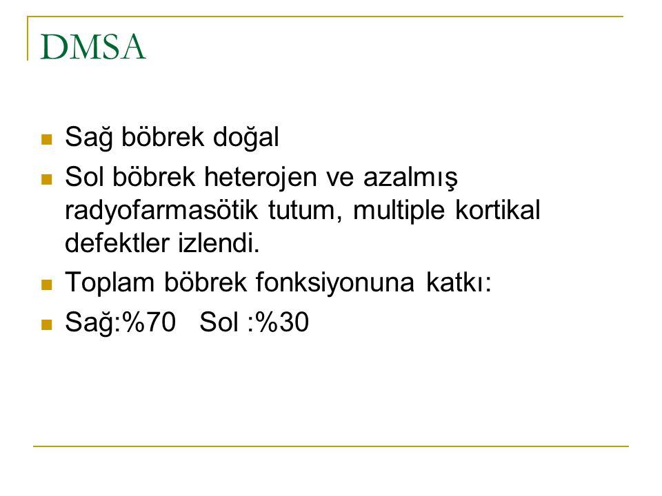 DMSA Sağ böbrek doğal Sol böbrek heterojen ve azalmış radyofarmasötik tutum, multiple kortikal defektler izlendi. Toplam böbrek fonksiyonuna katkı: Sa