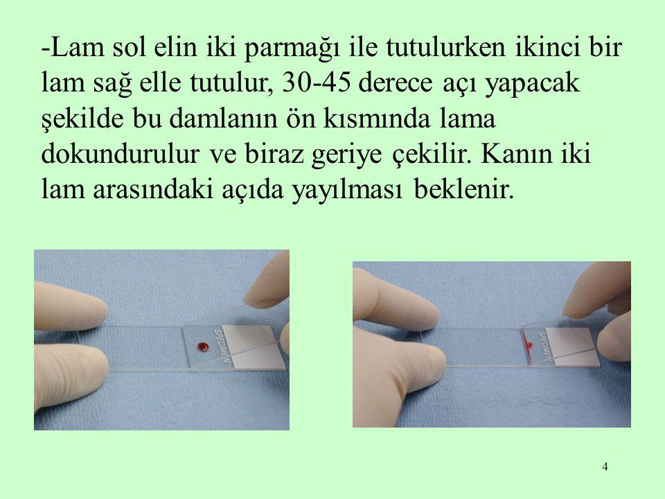 4 -Lam sol elin iki parmağı ile tutulurken ikinci bir lam sağ elle tutulur, 30-45 derece açı yapacak şekilde bu damlanın ön kısmında lama dokundurulur