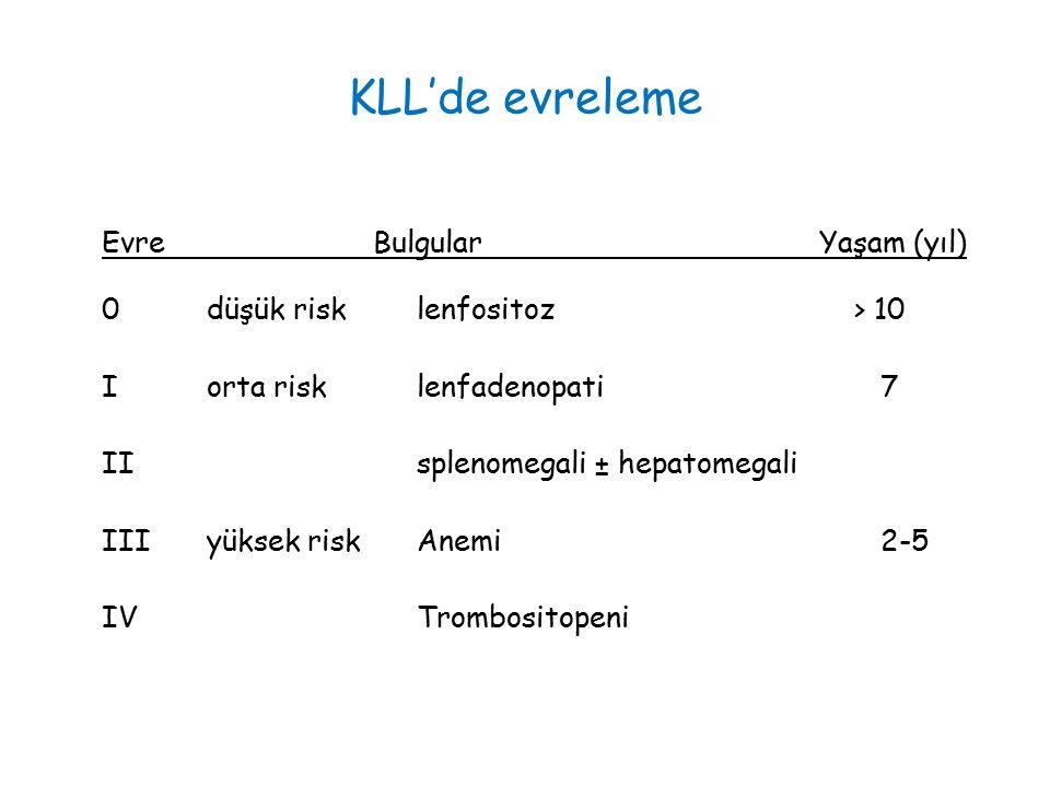 KLL'de evreleme Evre Bulgular Yaşam (yıl) 0düşük risklenfositoz > 10 Iorta risklenfadenopati 7 IIsplenomegali ± hepatomegali IIIyüksek riskAnemi 2-5 IVTrombositopeni
