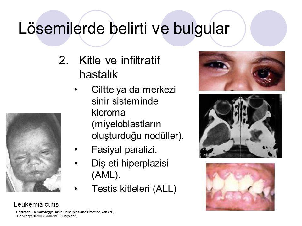 Lösemilerde belirti ve bulgular 2.Kitle ve infiltratif hastalık Ciltte ya da merkezi sinir sisteminde kloroma (miyeloblastların oluşturduğu nodüller).