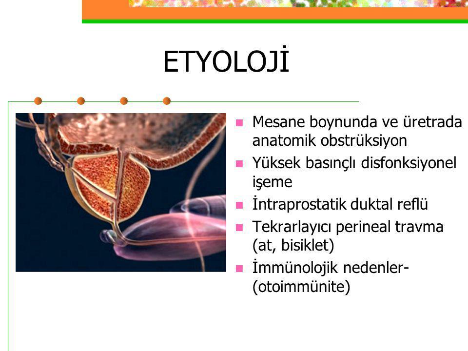 Kategori I Prostat bezinin jeneralize enfeksiyonudur Perinede ve suprapubik bölgede akut başlayan şiddetli ağrı, yüksek ateş, titreme, halsizlik İnflame ve şişmiş prostat bezi nedeniyle obstrüktif ve irritatif işeme semptomları; dizüri, pollakiüri Pürülan görünümlü prostat sıvısı ve kültürde bakteri (+) İdrar ve kan kültürü sonrasında hemen I.V.