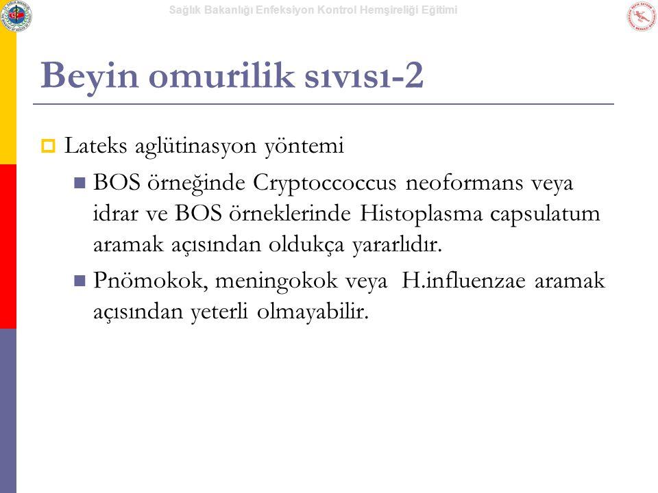 Sağlık Bakanlığı Enfeksiyon Kontrol Hemşireliği Eğitimi Beyin omurilik sıvısı-2  Lateks aglütinasyon yöntemi BOS örneğinde Cryptoccoccus neoformans v