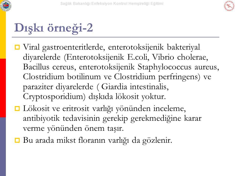 Sağlık Bakanlığı Enfeksiyon Kontrol Hemşireliği Eğitimi Dışkı örneği-2  Viral gastroenteritlerde, enterotoksijenik bakteriyal diyarelerde (Enterotoks