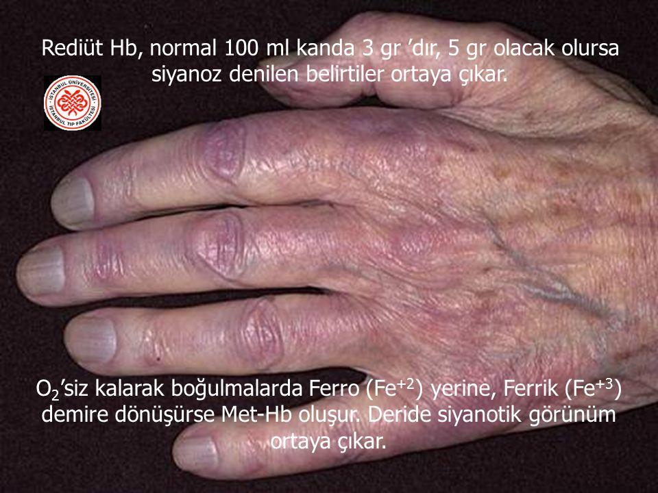 Rediüt Hb, normal 100 ml kanda 3 gr 'dır, 5 gr olacak olursa siyanoz denilen belirtiler ortaya çıkar.