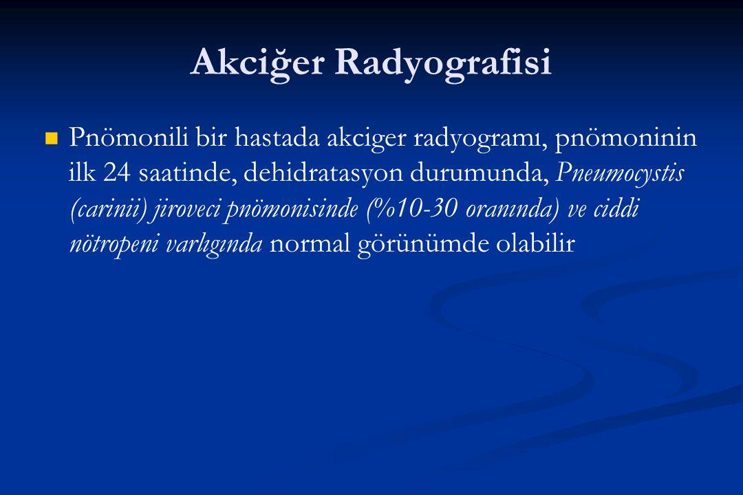 Akciğer Radyografisi Pnömonili bir hastada akciger radyogramı, pnömoninin ilk 24 saatinde, dehidratasyon durumunda, Pneumocystis (carinii) jiroveci pn