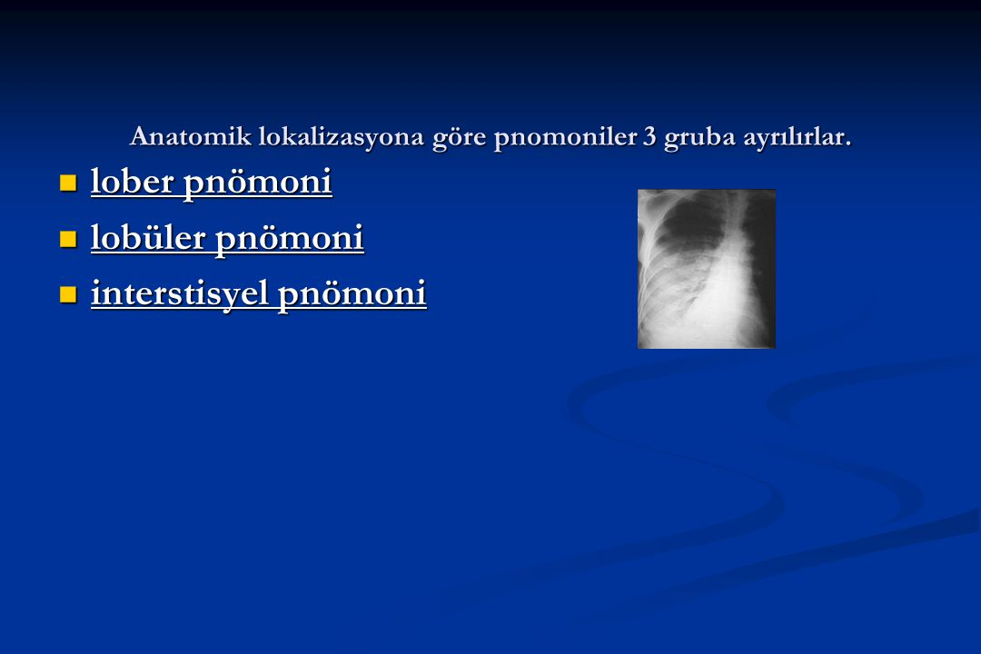 Anatomik lokalizasyona göre pnomoniler 3 gruba ayrılırlar. lober pnömoni lober pnömoni lobüler pnömoni lobüler pnömoni interstisyel pnömoni interstisy