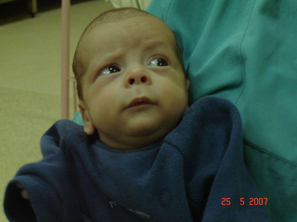 Yenidoğan sepsisi başlangıç zamanına göre erken başlangıçlı sepsis ve geç başlangıçlı sepsis olmak üzere iki gruba ayrılır.