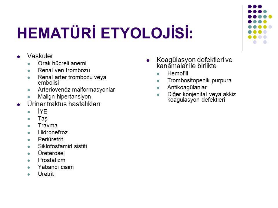 HEMATÜRİ ETYOLOJİSİ: Vasküler Orak hücreli anemi Renal ven trombozu Renal arter trombozu veya embolisi Arteriovenöz malformasyonlar Malign hipertansiy