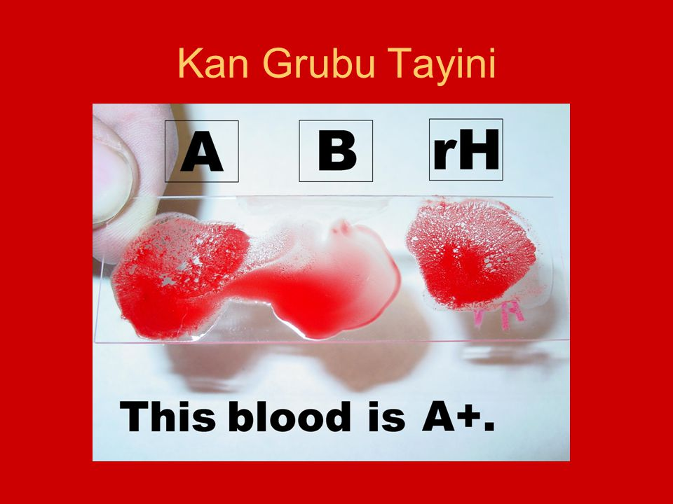 Kan Grubu Tayini
