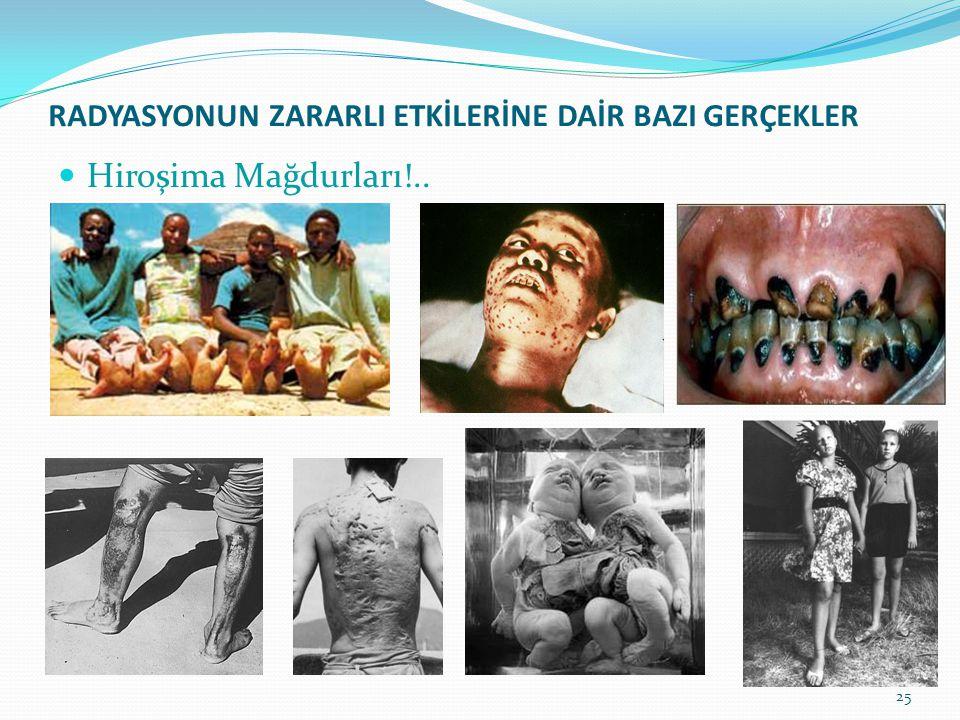 RADYASYONUN ZARARLI ETKİLERİNE DAİR BAZI GERÇEKLER Hiroşima Mağdurları!.. 25