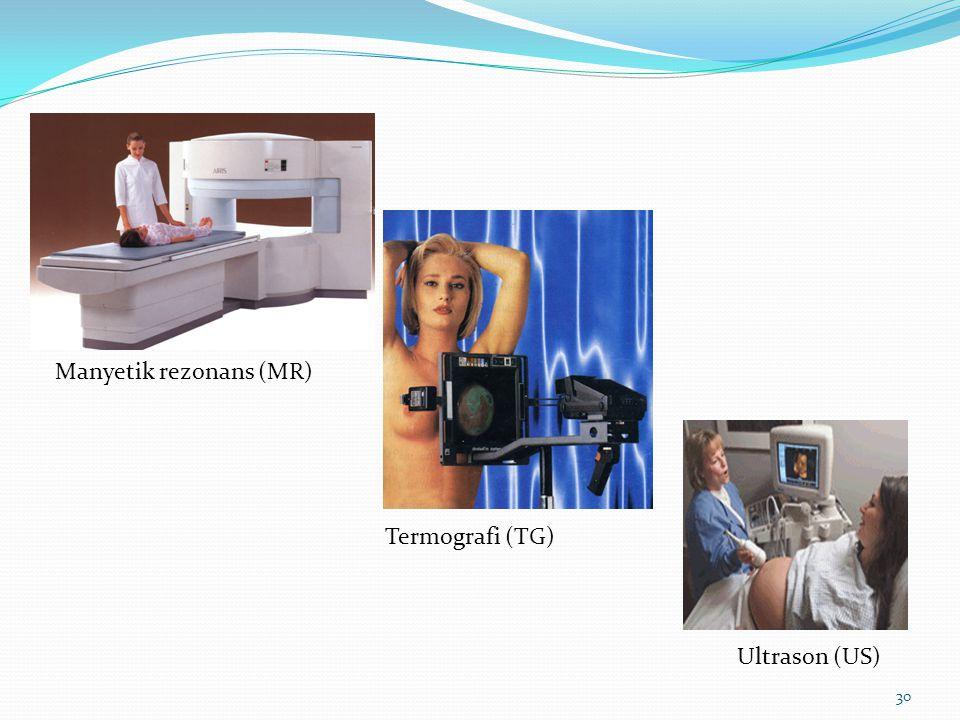 30 Manyetik rezonans (MR) Termografi (TG) Ultrason (US)