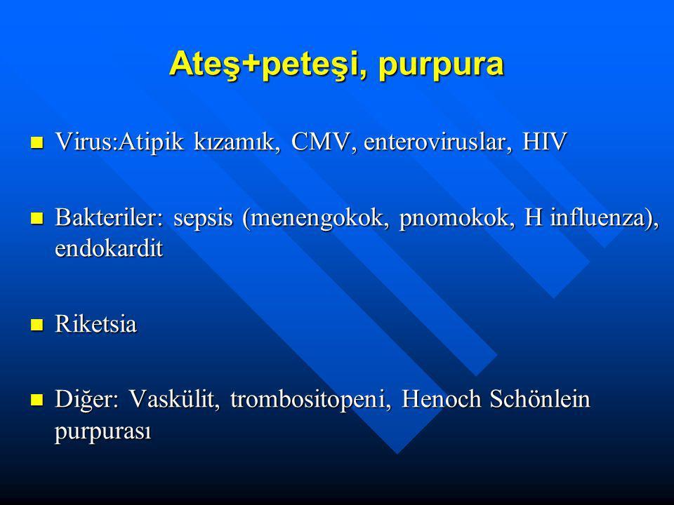 Ateş+peteşi, purpura Virus:Atipik kızamık, CMV, enteroviruslar, HIV Virus:Atipik kızamık, CMV, enteroviruslar, HIV Bakteriler: sepsis (menengokok, pno